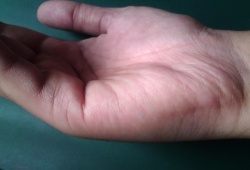 2 Marriage Lines On Palm